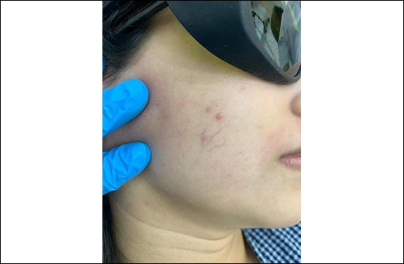 My Review Of Laser Treatment And Spider Veins